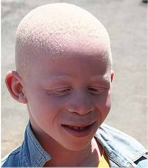 Child with albinism